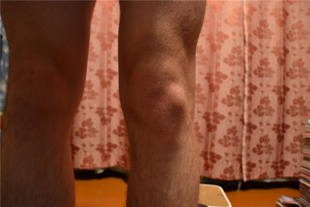 Подвижность суставов факторы