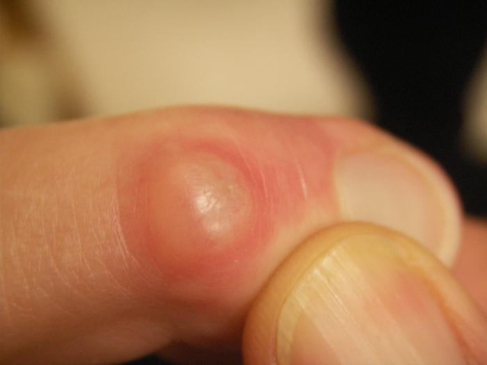 Как справиться с шишкой у большого пальца ноги