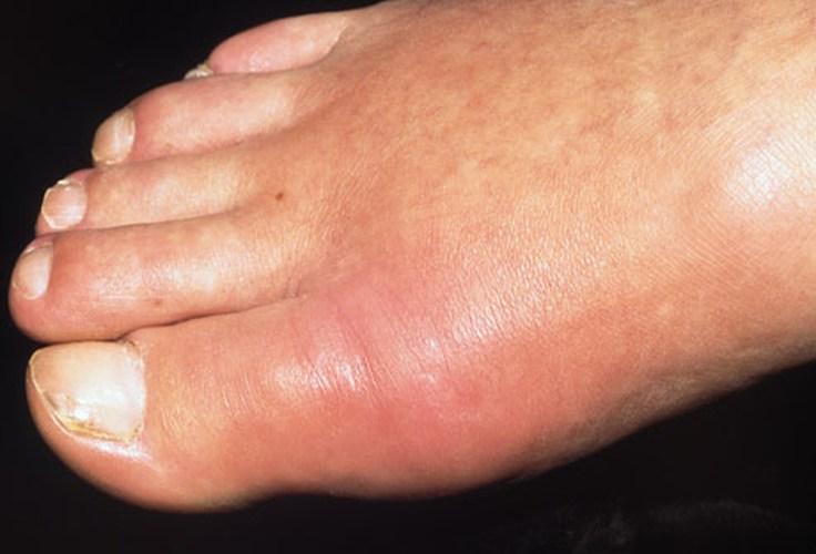 подагрический артрит как снять боль