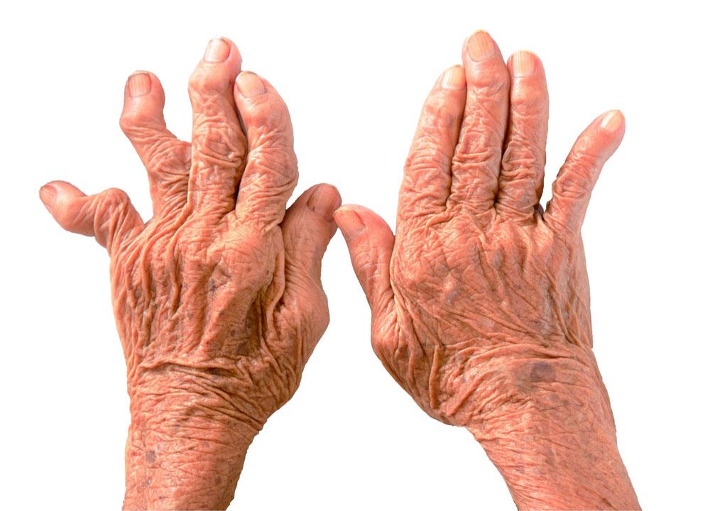 Медикаментозное лечение артрита пальцев рук Суставы