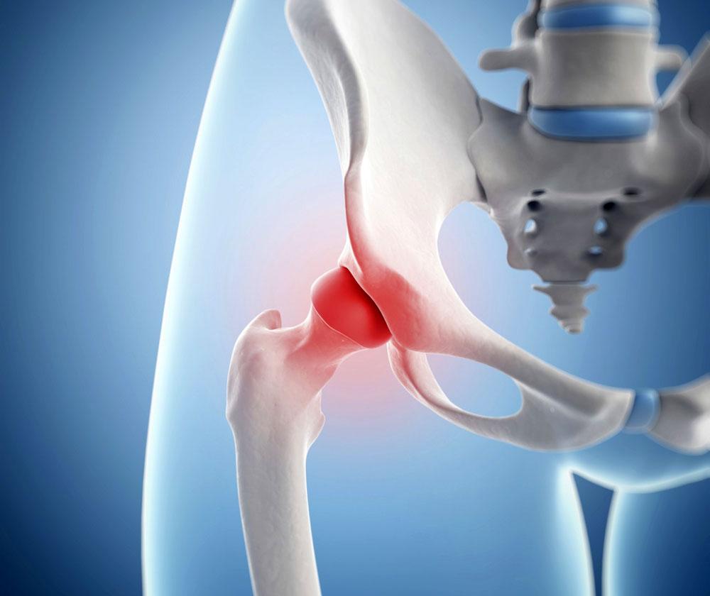 Воспаление тазобедренного сустава симптомы и лечение у ребенка и взрослого