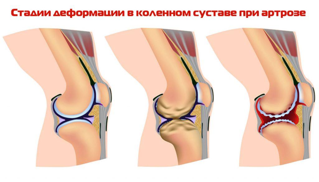 лечение запущенных болезней суставов