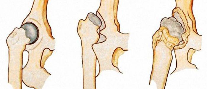Дисплазия верхних и нижних конечностей