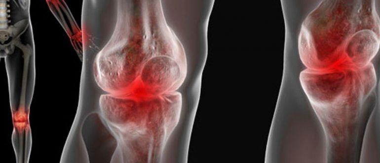 симптомы артроза коленного сустава первой степени