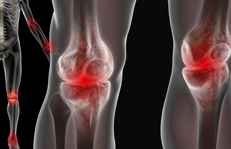 лечение суставов где лучше