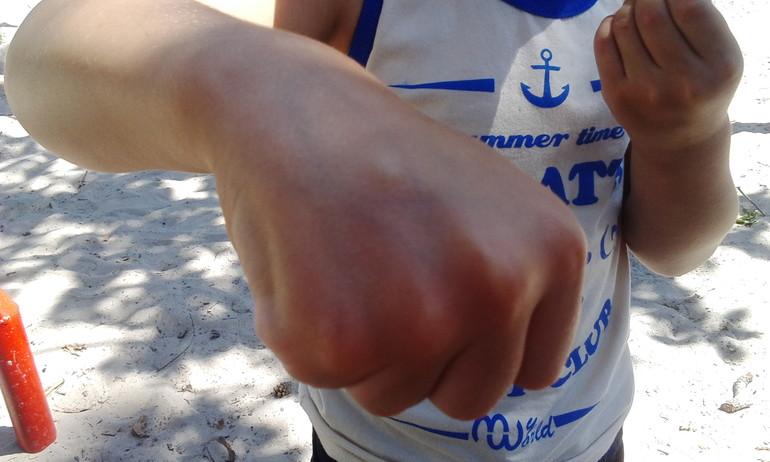 аллергия у детей фотографии различной сыпи при пищевом фото