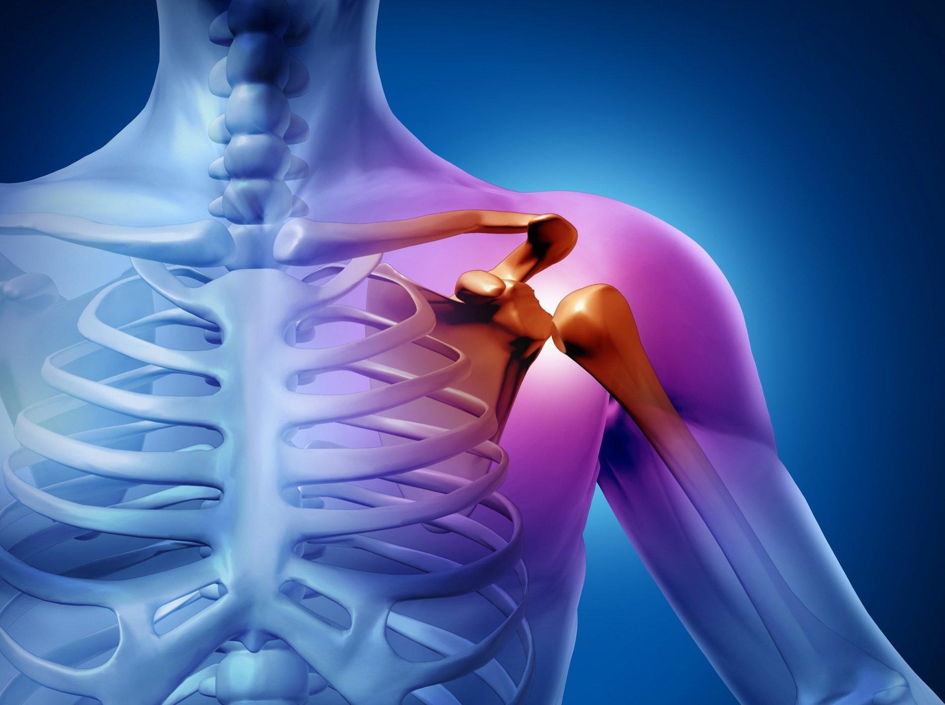 Каменный бурсит плечевого сустава купить ортезы коленного сустава