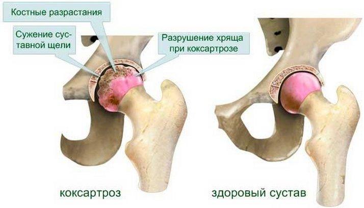 остеоартроз тазобедренных суставов причины