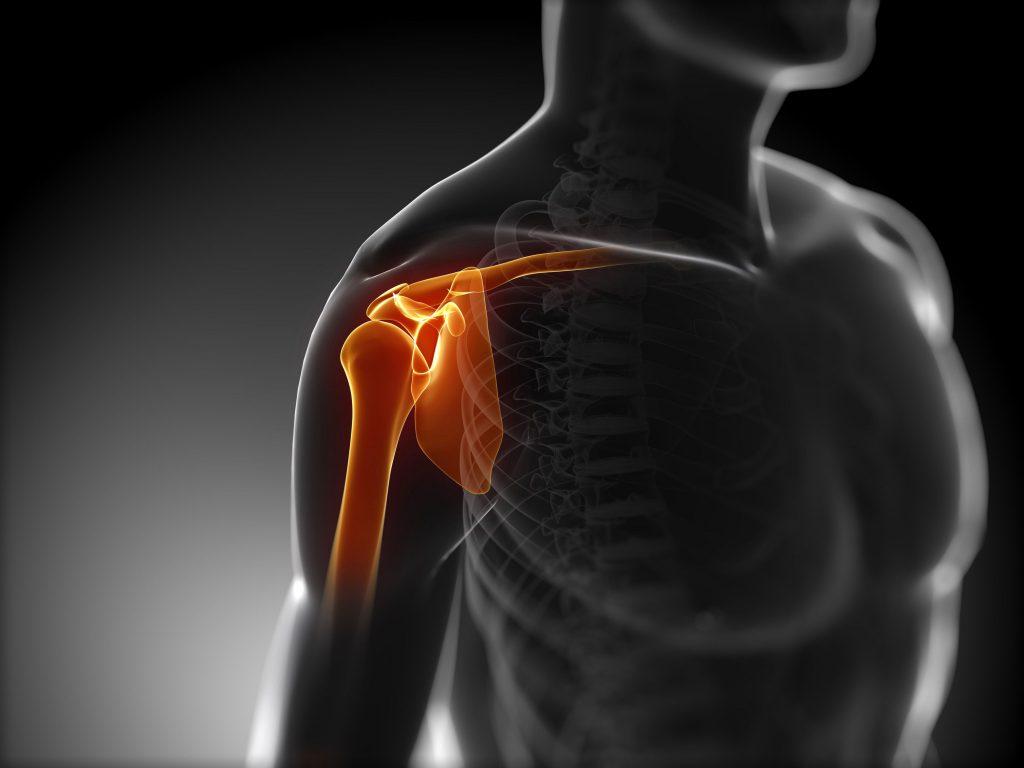 симптомы бурсит плечевого сустава как лечить