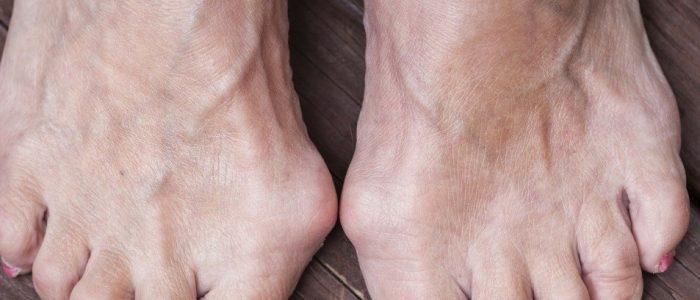 Убрать косточку на ноге без операции лечение шишек