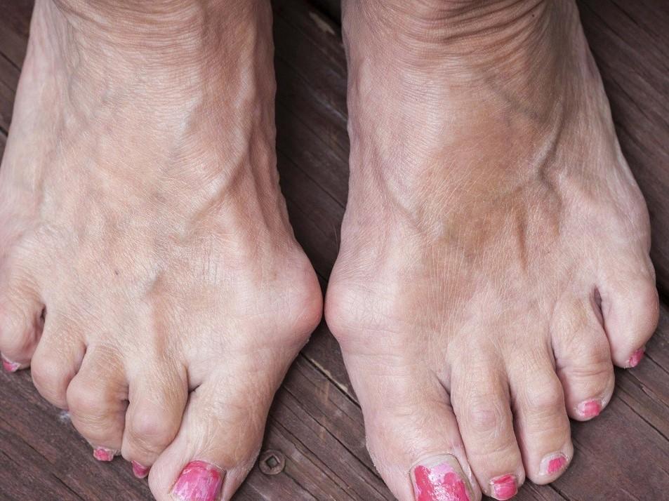 Удаление косточек на ногах без операции по Бендицкому