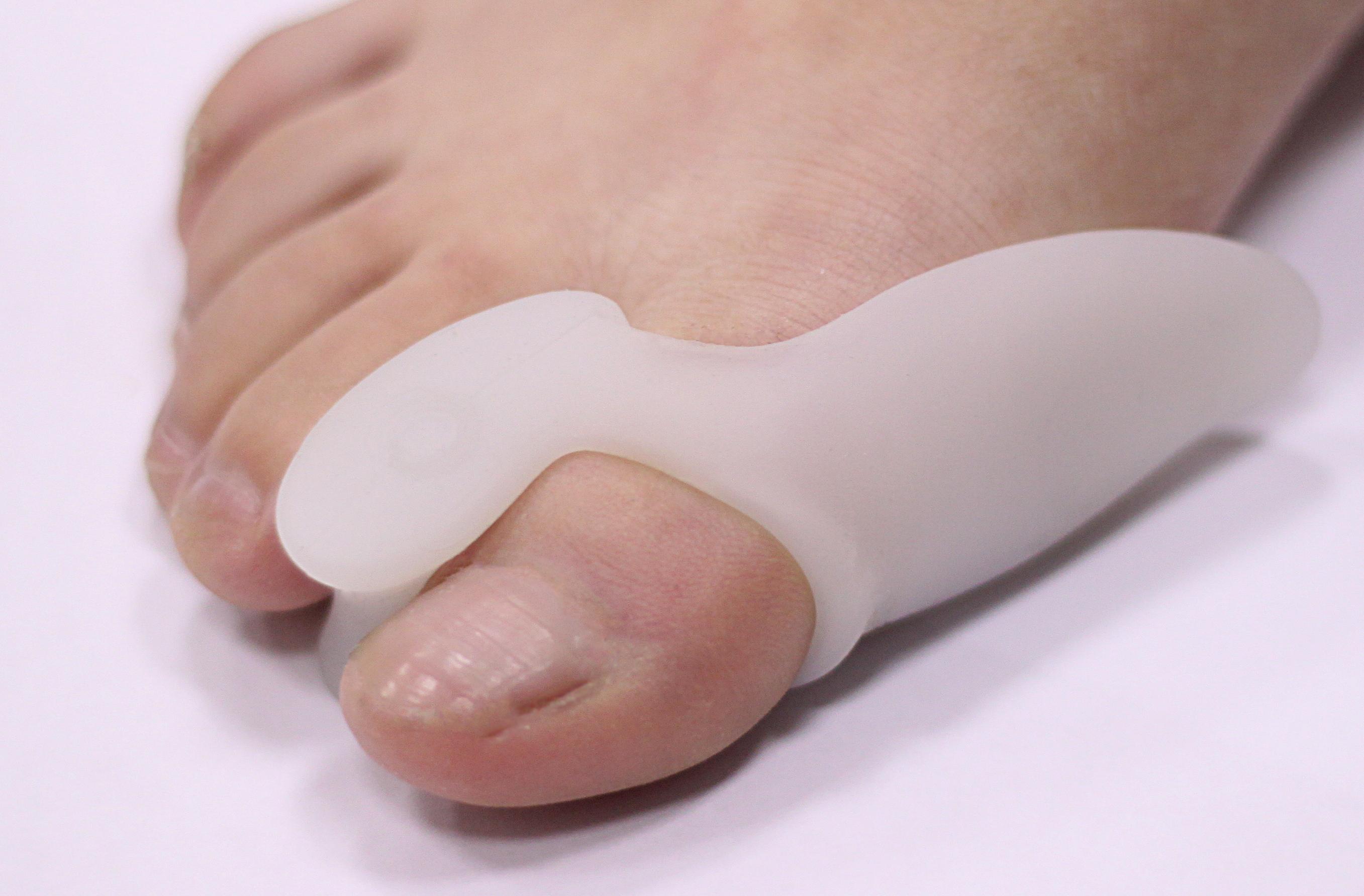 Использование ортопедических фиксаторов для лечения косточки на стопе