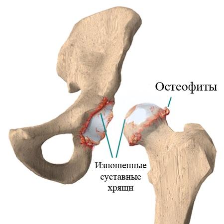 как лечить остеофиты в коленных суставах