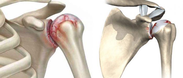 признаки деформирующего артроза плечевых суставов 1 степени