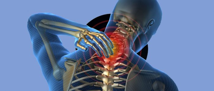 Шейный остеохондроз немеют руки лечение