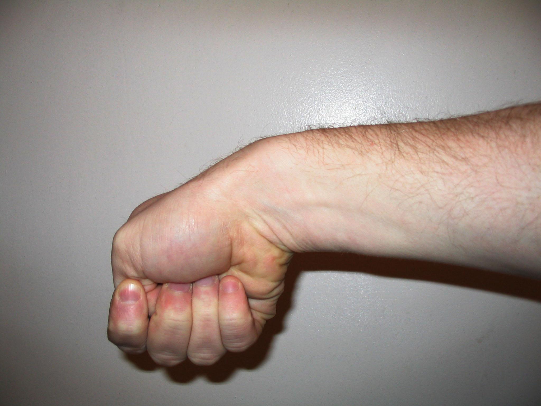 растянутая рука фото