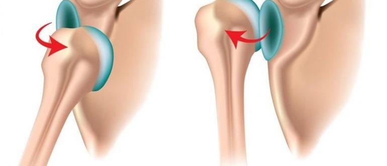 При вывихах колена лечение в домашних условиях 309