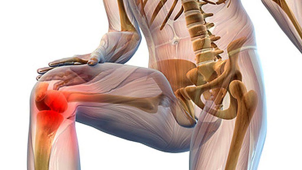 лечение болей в суставах коленей
