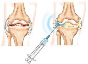 чем лечится деформирующий остеоартроз