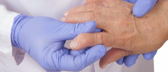 Артрит как причина хронического тонзиллита