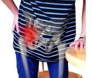 Лечение коксартроза 2 степени