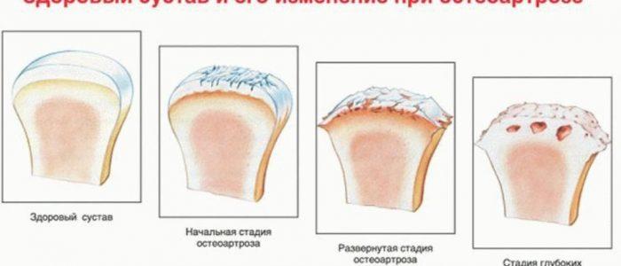 Остеоартроз: лечение, симптомы, причины и диагностика