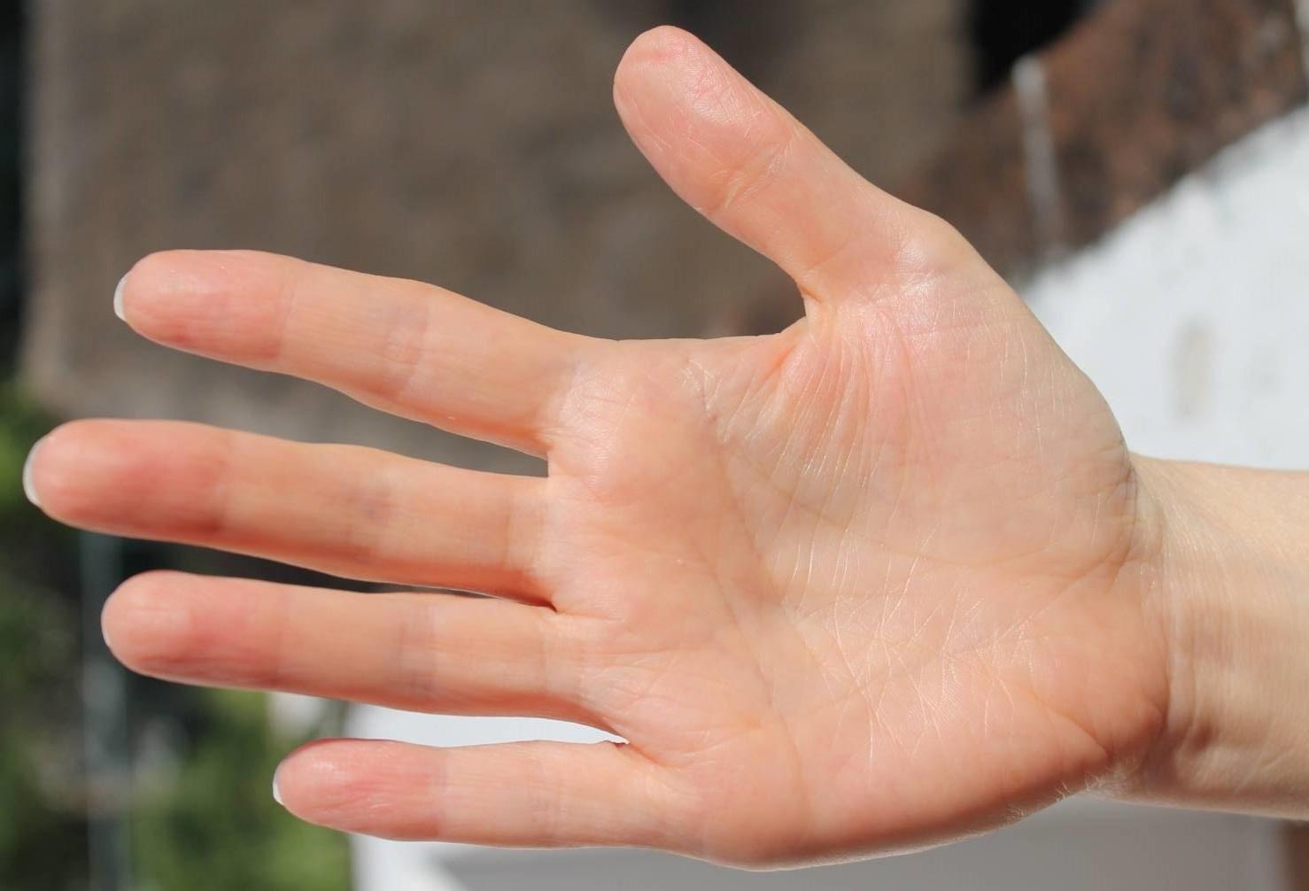 лфк при гемартрозе локтевого сустава