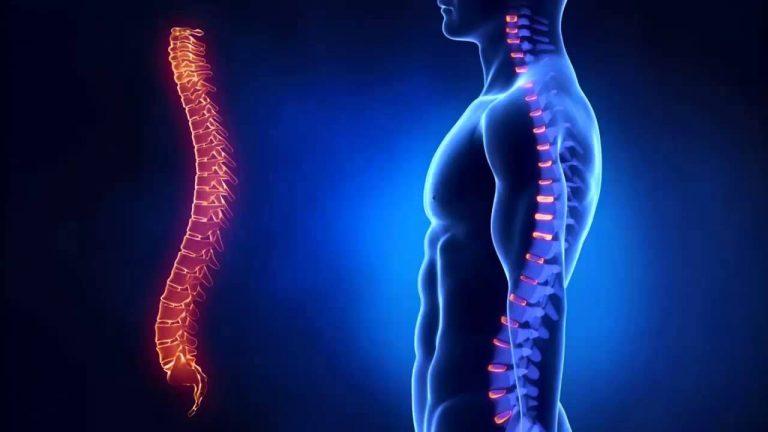 Чем и как лечить остеохондроз позвоночника в домашних условиях 590