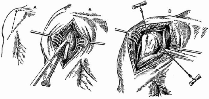 Техника артротомии плечевого сустава артроз коленных суставов дюфастон