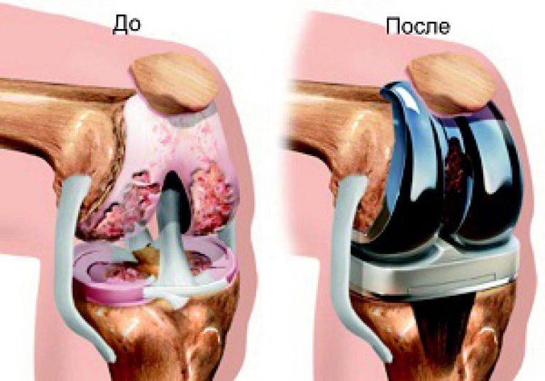 гонартроз коленного сустава 4 степени операция