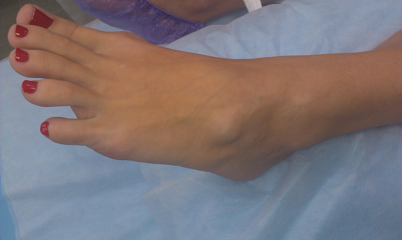 Ушиб пальца на ноге: что делать в домашних условиях 54