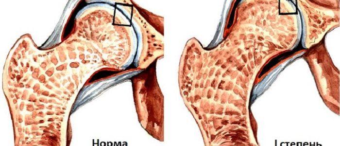 Коксартроз 1 степени лечение тазобедренного сустава
