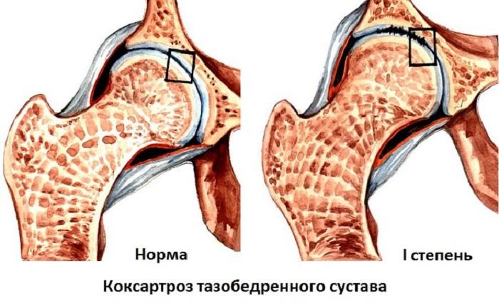 коксартроз 4 стадии
