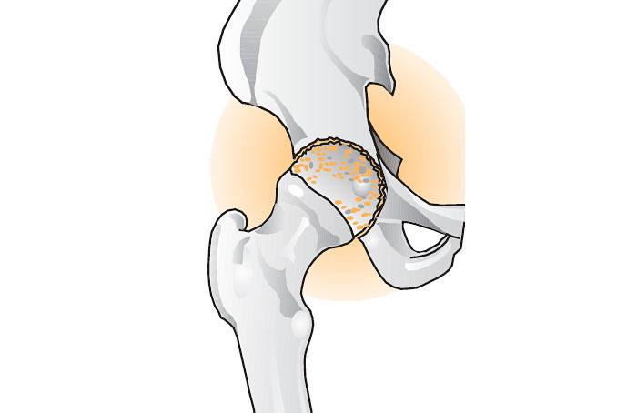 Артроз голеностопного сустава 2 степени лечение Суставы