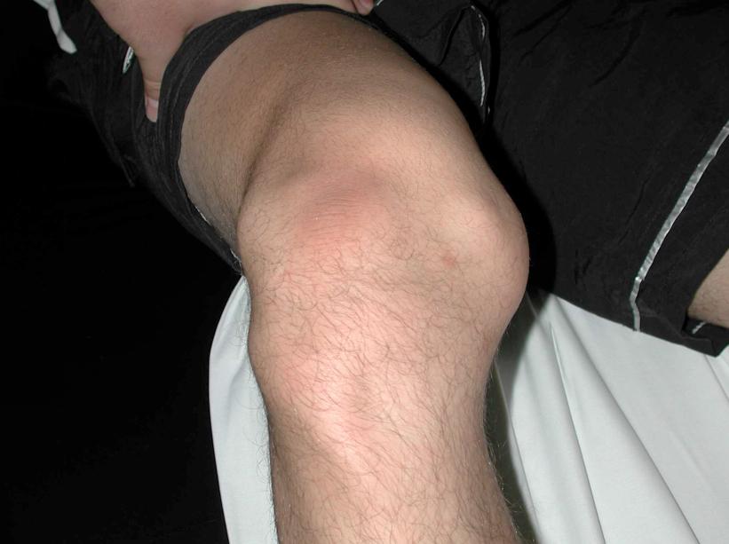 Что делать если выскакивает коленный сустав бальзам дикуля 3в1 для суставов отзывы