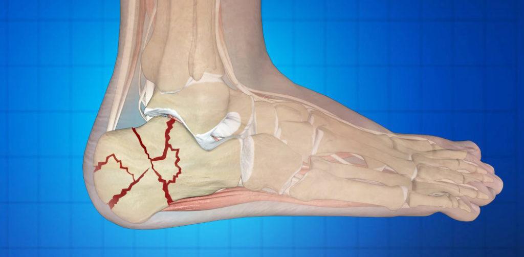 Перелом костей голени реабилитация