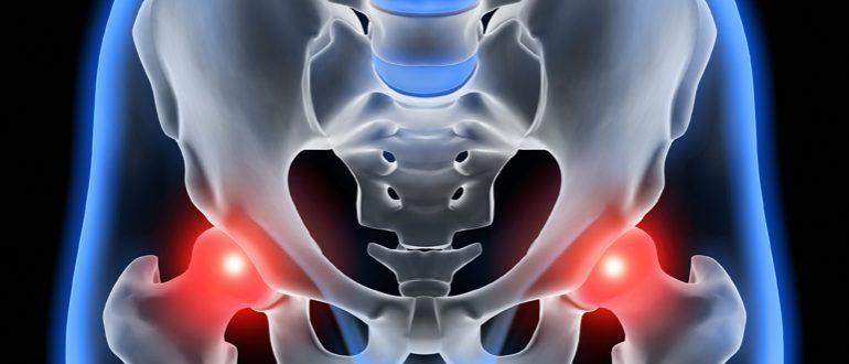 Лечение кокс артроза