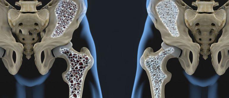 Что такое остеопороз костей таза