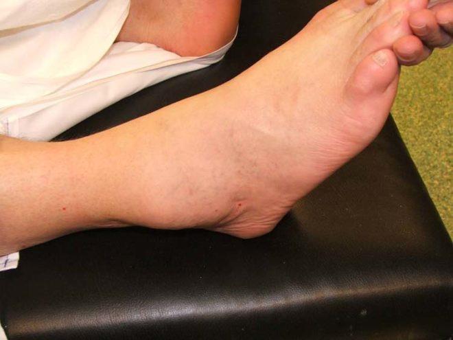 Отек голеностопного сустава лечение народными средствами