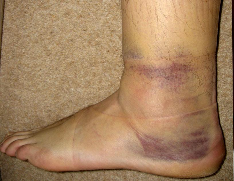 Как лечить ушиб ноги с отеком в домашних условиях
