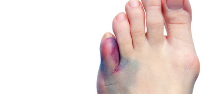 Ушиб мизинца на ноге лечение