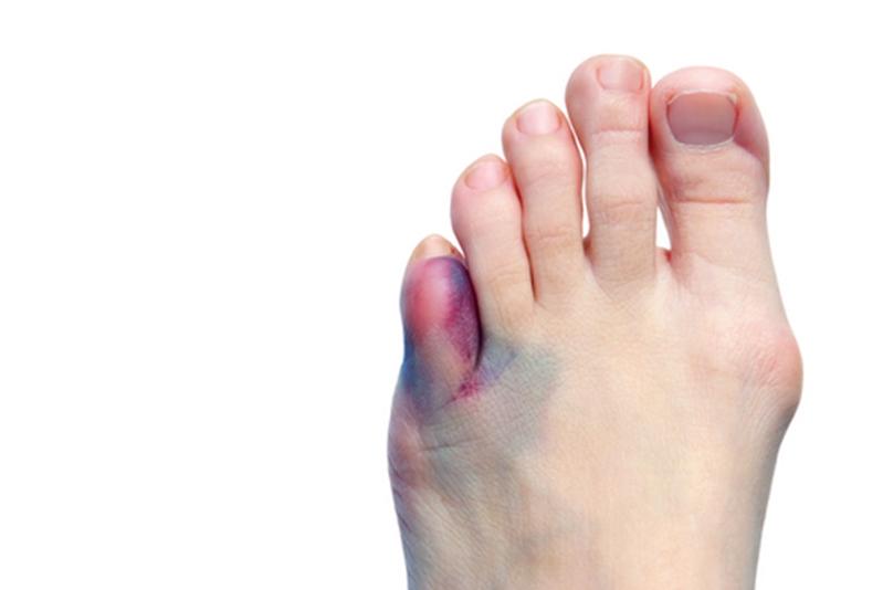 Что делать при переломе пальца ноги в домашних условиях 157
