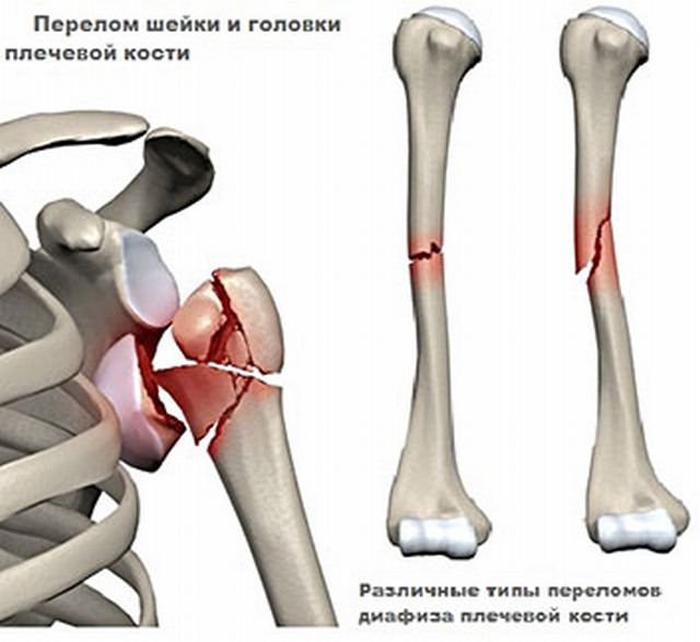 Ненаркотические анальгетики при переломе плеча