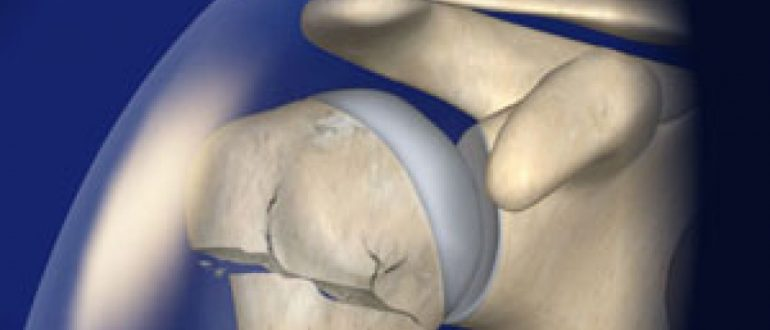 Вывих плечевого сустава плеча Причины, симптомы, виды