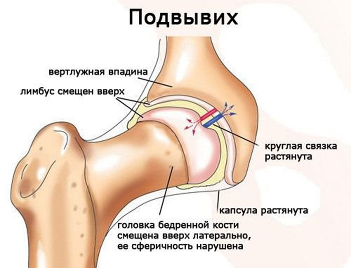 внешними признаками вывиха плечевого сустава является