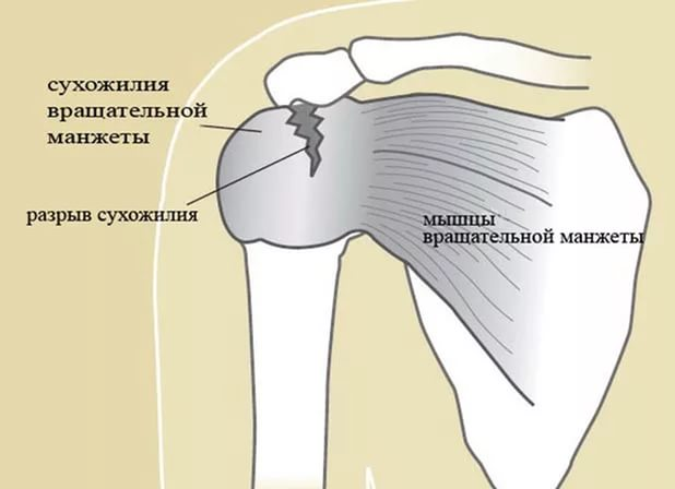 повреждение ротаторной манжеты левого плечевого сустава