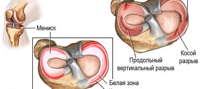 диагностика разрыва мениска коленного сустава