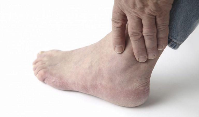 подагрический артрит суставов кисти руки лечение