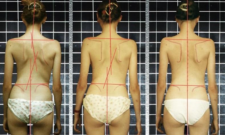 Как выпрямить спину при сколиозе 2 степени