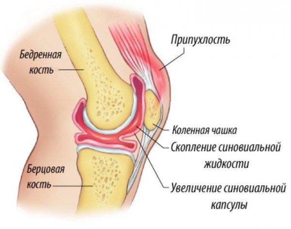 чем отличается артроз от гонартроза коленного сустава